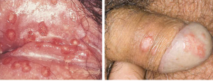 Điều trị và phòng bệnh Herpes sinh dục