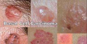 Yếu tố nguy cơ và phòng bệnh ung thư tế bào đáy