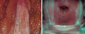 Phân biệt và điều trị bệnh viêm âm đạo do trùng roi