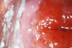 Điều trị và phân biệt bệnh viêm âm hộ-âm đạo do nấm Candida